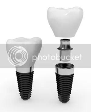 dental implants palm beach
