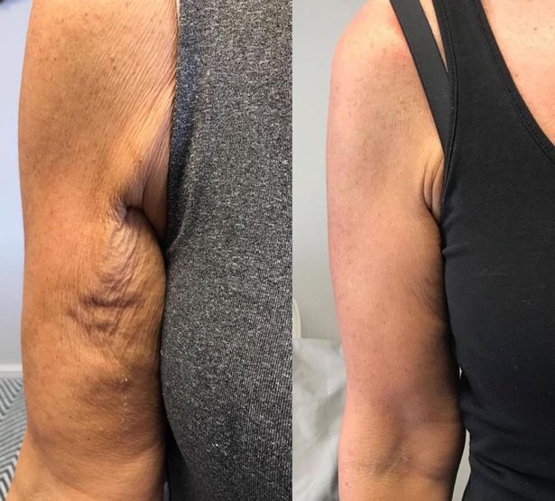 Dermoperfection highlights the before and after changes to the arm after using anti-ageing treatment Profhilo