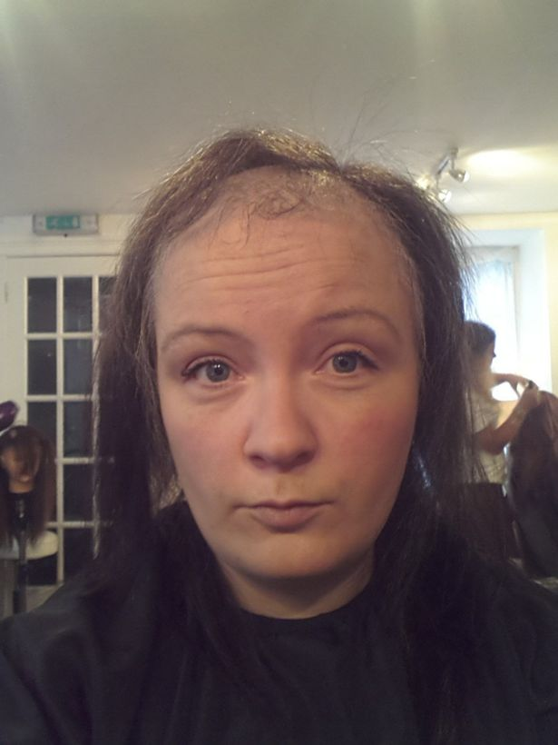 Alopecia Is Ruining The Lives Of Many Women But Hi Tech