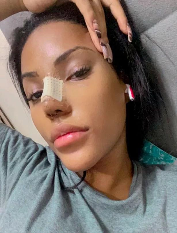 Ana after a nose job