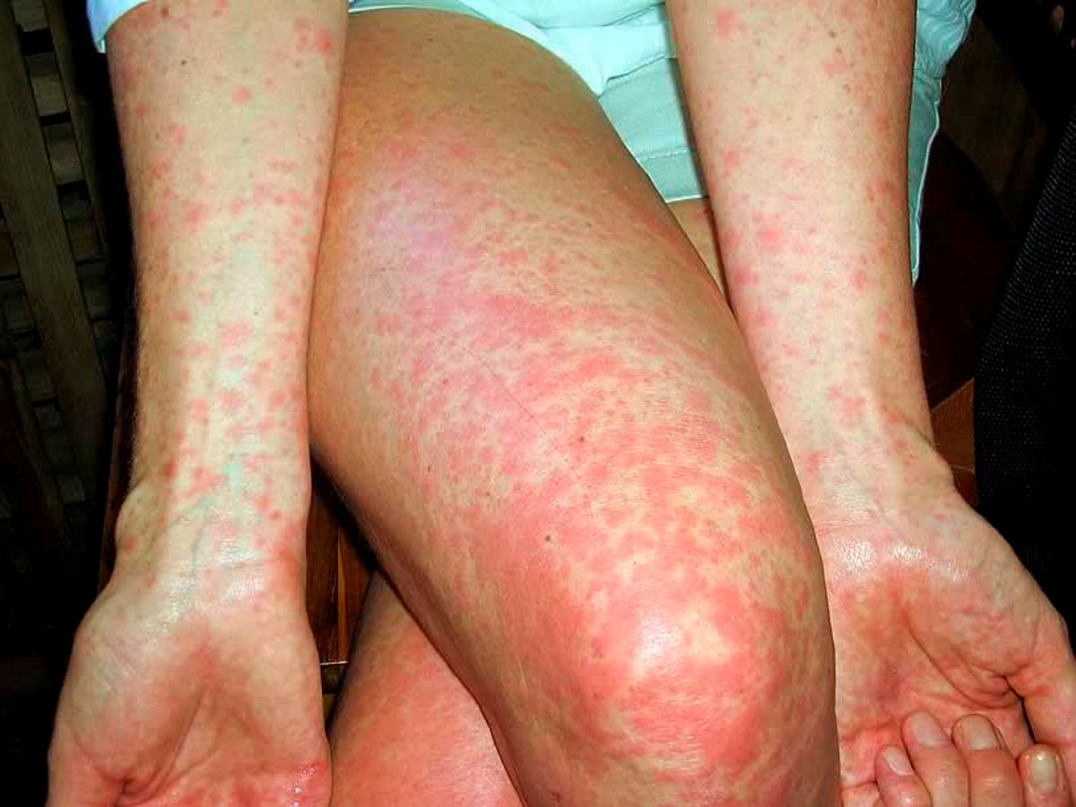 Scarlet fever breaks out in Gloucestershire with multiple new ...