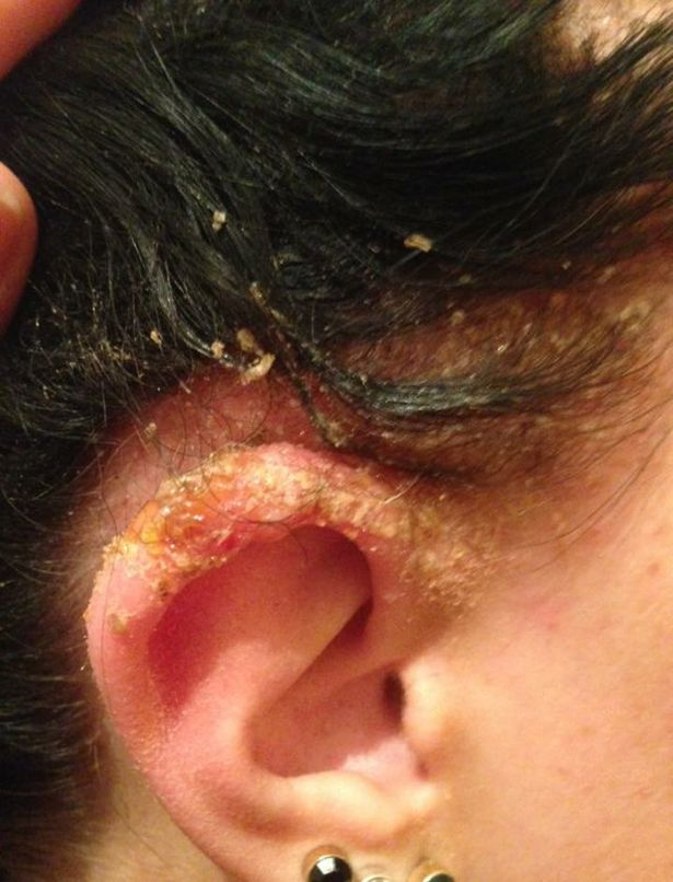 Make Up Artist Nearly DIED After Being Poisoned By Hair