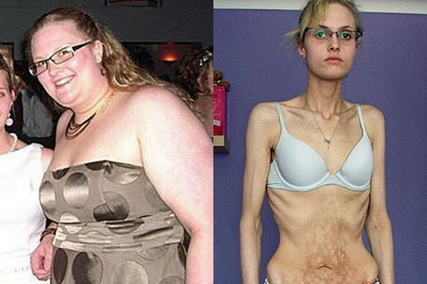 anorexia made me lose