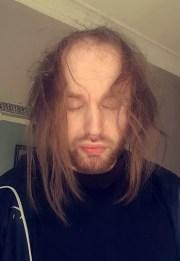 man bald in 20s -conscious