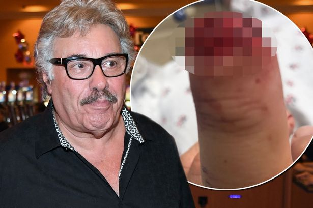 Knock next time Legendary crooner Tony Orlando reveals he severed tip of his finger off  in