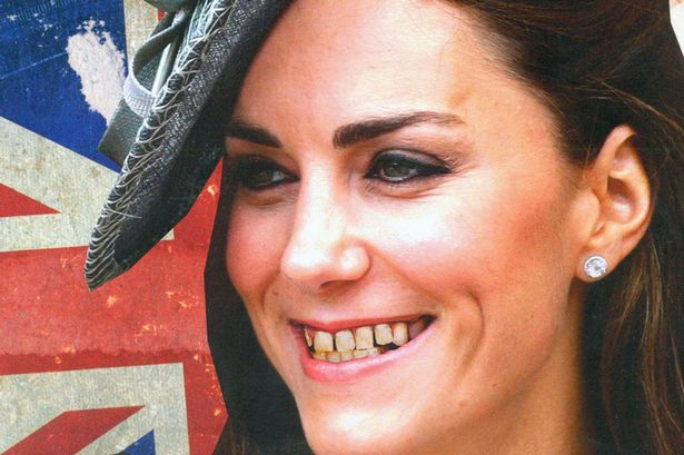 Duchess Of Cambridge Kate Middleton Flashes Yellow Rotten