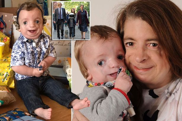 Image result for My son is a Wonder like Auggie – look past the deformities and see the cute little boy with a great character