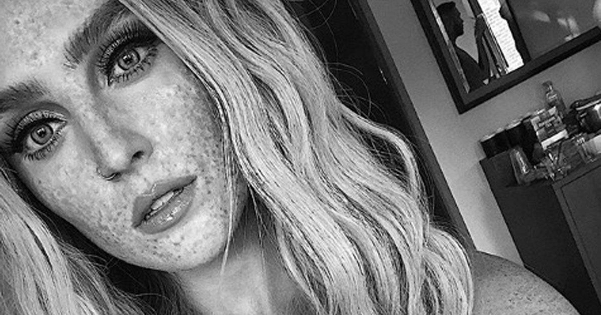 Perrie Edwards unleashes gorgeous freckles after years of covering natural skin with stage