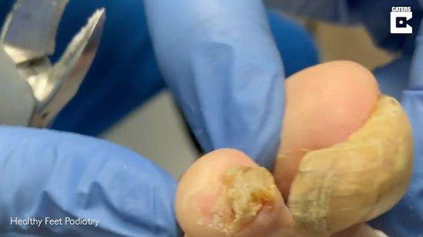 PICS: NOT CUTTING YOUR TOENAILS MIGHT RESULT IN INFECTIONS