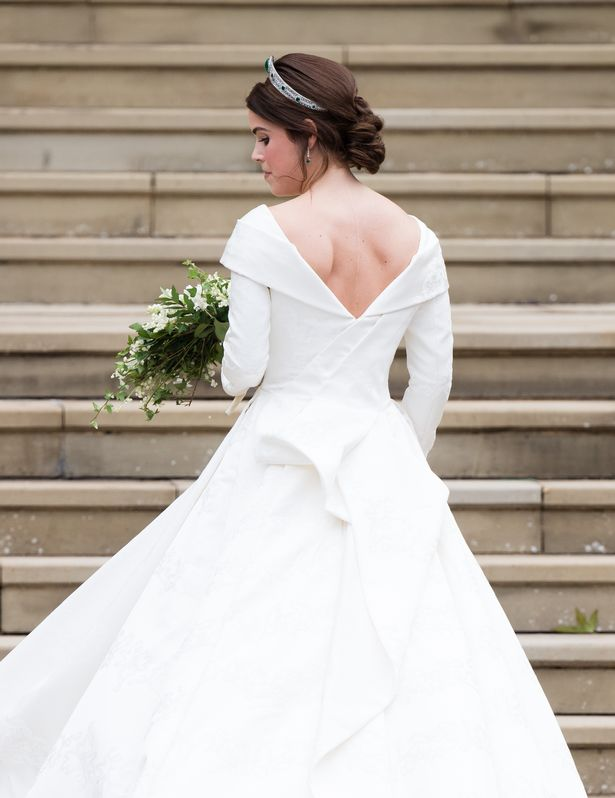 Princess Eugenie proudly showed off her scar on her wedding day