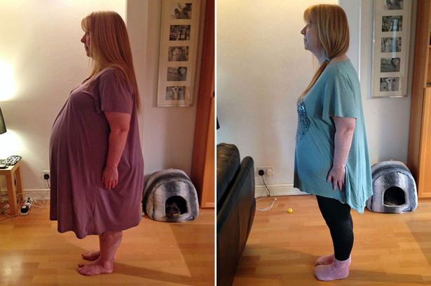 Womans FIVESTONE ovarian cyst Woman who thought she was pregnant left devastated  Mirror Online