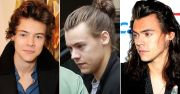 harry styles losing hair