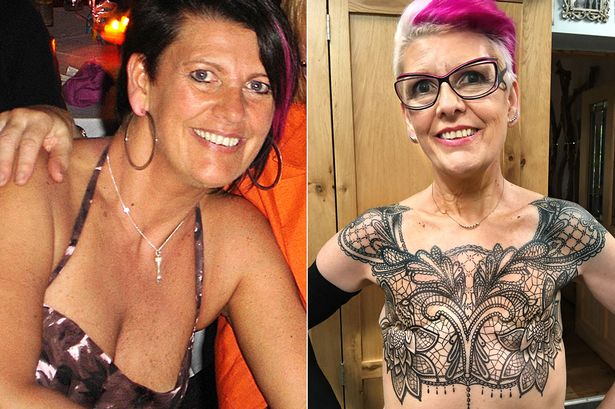 Breast Tattoos After Mastectomy
