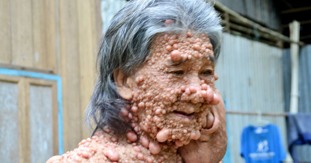 Disfigured hermit who hid for 45 years suffering rare bubblelike tumour skin condition comes