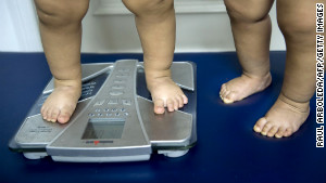 Obesity in the US Fast Facts