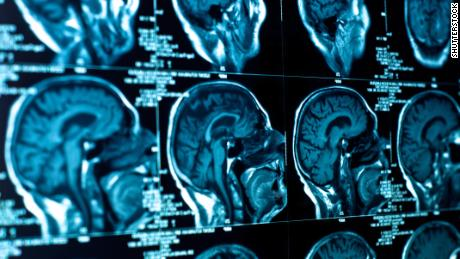 'Male brains' linked to higher autism risk in women, study says