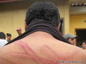 The marks of a police truncheon are shown on a student's back after a protest, Amnesty International says.