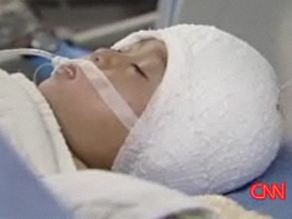 Malik, a 4-year-old boy in Afghanistan suffered a severe head injury earlier this week but is recovering well.