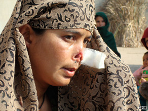 Fazeelat rarely ventures out of her house after the attack.