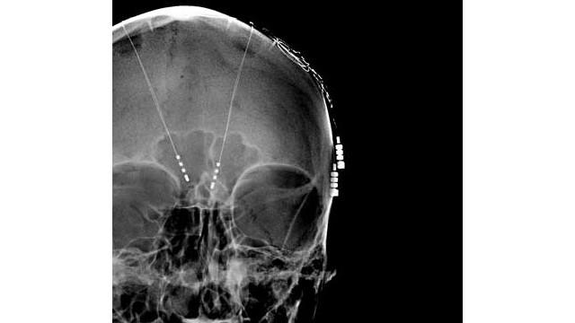 Los órganos como el cerebro también padecen cuando hace calor