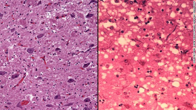 The brain on the left is healthy; the brain on the right has mad cow disease.