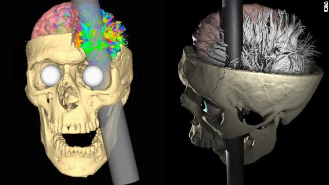 El misterio de Phineas Gage: ¿Cómo vivió 12 años con una varilla clavada en el cerebro?