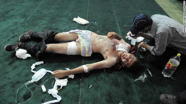 A protester receives treatment at the Al-Fateh mosque in Cairo on August 16.