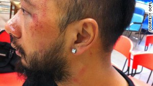 Tsang displays bruising to his face following an alleged police assault.