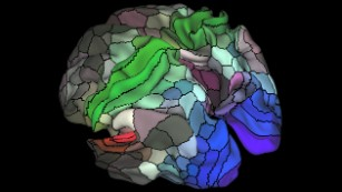 This image shows the pattern of brain activation (red, yellow) and deactivation (blue, green) in the left hemisphere when listening to stories while in the MRI scanner.