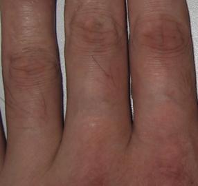 關節炎型銀屑病早期癥狀都有哪些? - 每日頭條