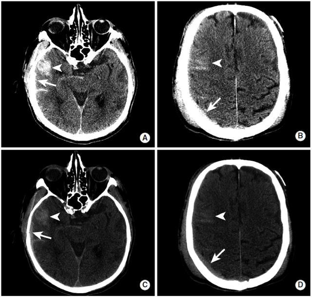 多圖|顱內出血影像學表現大全 - 每日頭條