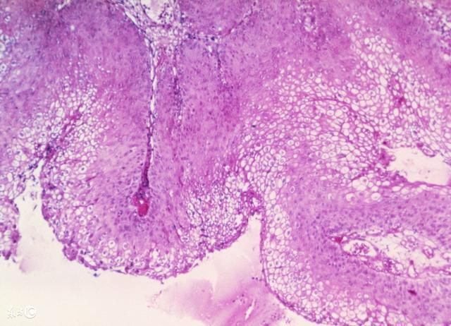 女人「下面」長痘怎麼辦?做這些檢查可確診 - 每日頭條