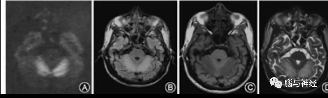 神經影像:維生素B12缺乏神經綜合徵丨臨床必備 - 每日頭條