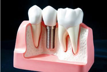 鑲牙、活動假牙還是種植牙?到底哪種好? - 每日頭條