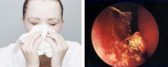 慢性鼻竇炎的癥狀有哪些?如何有效防治? - 每日頭條