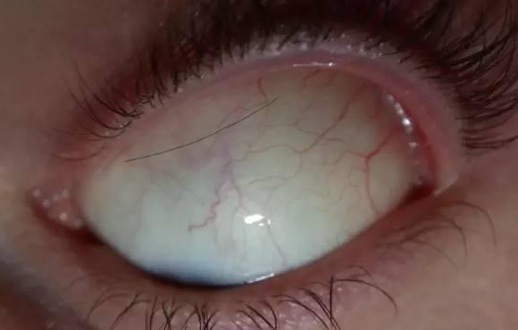 睫毛掉眼睛越柔越疼 正確的方法是 - 每日頭條