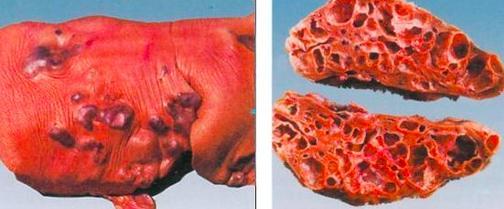 什麼是肝包蟲病呢 - 每日頭條