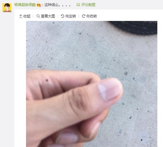 美甲師一眼看出她得了癌 指甲上的黑線究竟是啥? - 每日頭條