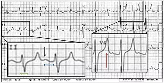 警惕!6種可能致命的心電圖異常不容忽視! - 每日頭條