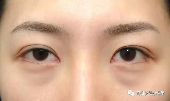 眼袋怎麼消除?這些生活中的小妙招幫你快速去除眼袋 - 每日頭條