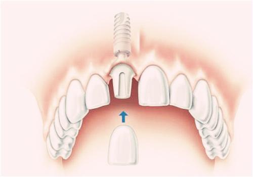 牙痛偏方 神奇偏方讓你不再忍受牙痛折磨 - 每日頭條