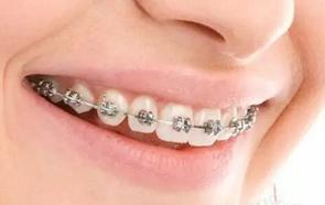 4種常見類型的牙套 - 每日頭條