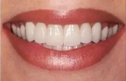 烤瓷牙和全瓷牙到底有什麼不同?為什麼現在很多醫生都推薦全瓷牙 - 每日頭條