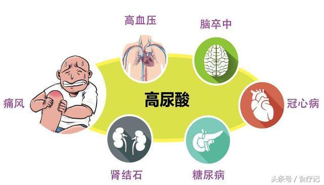 痛風與尿酸高有什麼關聯?如何預防? - 每日頭條