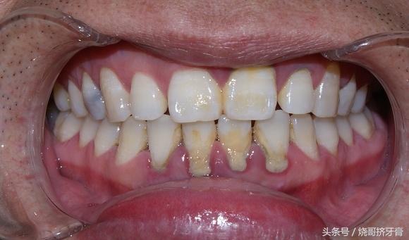 這下好了,洗牙後牙根變長,牙齦也萎縮了怎麼辦? - 每日頭條