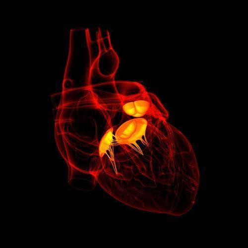 做心臟瓣膜手術就一定要開胸?這篇文章給了你答案…… - 每日頭條