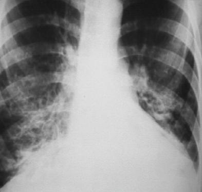 什麼是支氣管擴張?它有哪些臨床表現?該如何診斷? - 每日頭條