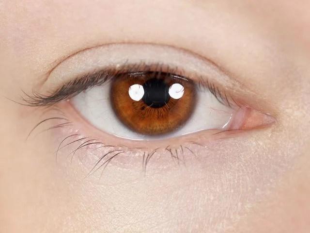 青光眼有哪些早期癥狀 這病的四個表現 - 每日頭條