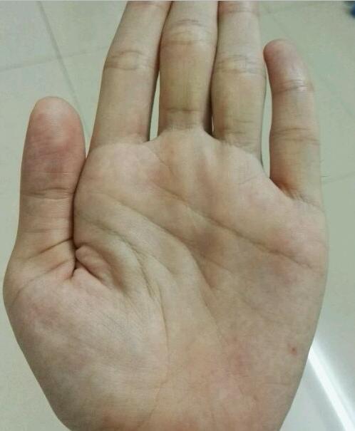 手紋上出現這個符號居然是身體在發出預警!不加以注意甚至會喪命 - 每日頭條