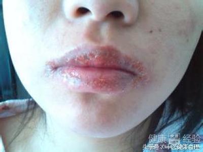 中醫說唇炎。 - 每日頭條